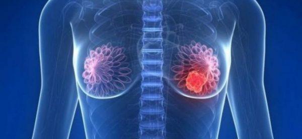 El bazo y el cáncer